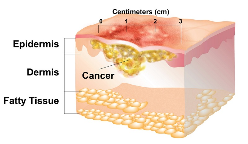Overview of NonMelanoma    Skin    Cancer  American Head
