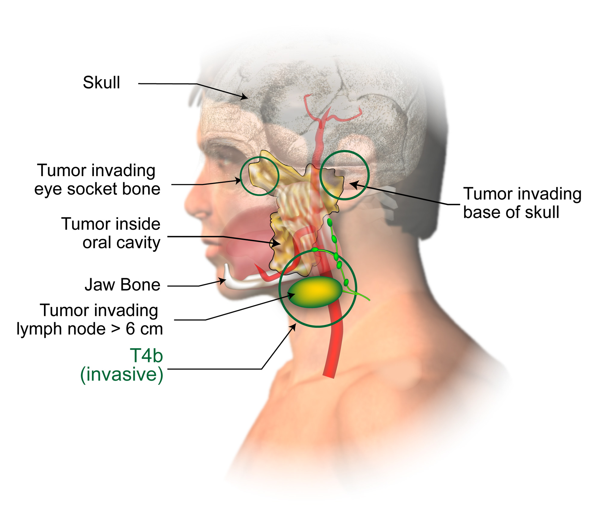 Staging of lip and oral cavity cancer american head neck society pooptronica